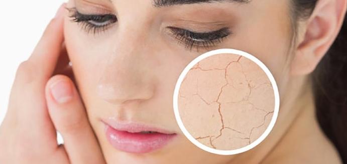 Une peau sèche, ce qu'il faut et ne faut pas faire