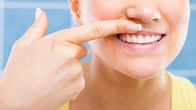 Qu'est-ce que la parodontite ?