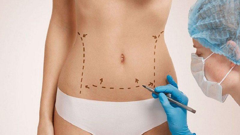 Les risques liés à la chirurgie abdominale