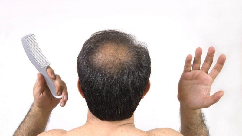 Perte de cheveux chez les hommes : causes et traitements
